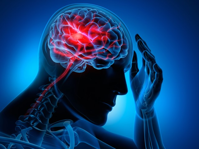 Stroke Cerebro Vascular Accident