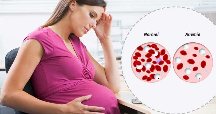 Anemia in pregnancy stage