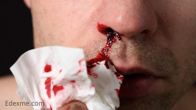 Nose bleeding common in men than in women