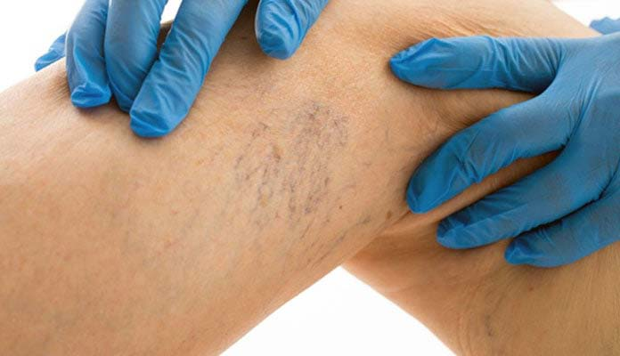 Arterioles and varicose veins in the foot