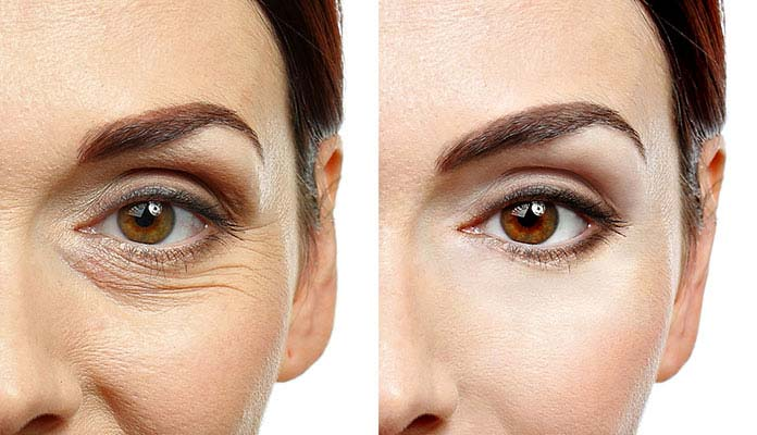Everything about blepharoplasty eye renewing surgery