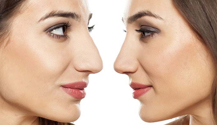 Rhinoplasty surgery for beauty nose