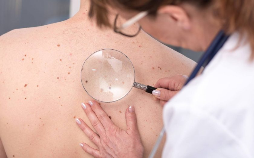 Melanoma is a type of skin cancer